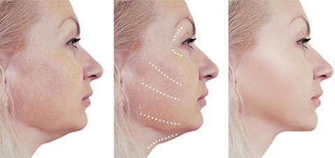 Sagging skin treatment